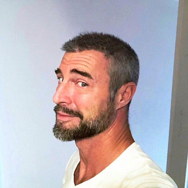flavio montrucchio trapianto capelli prima dopo foto