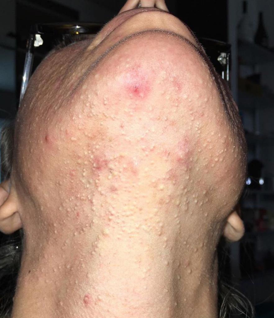 laura cremaschi foto acne