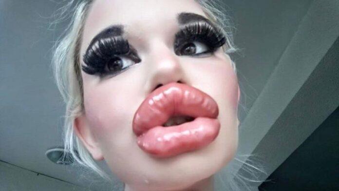 andrea ivanova interventi labbra barbie