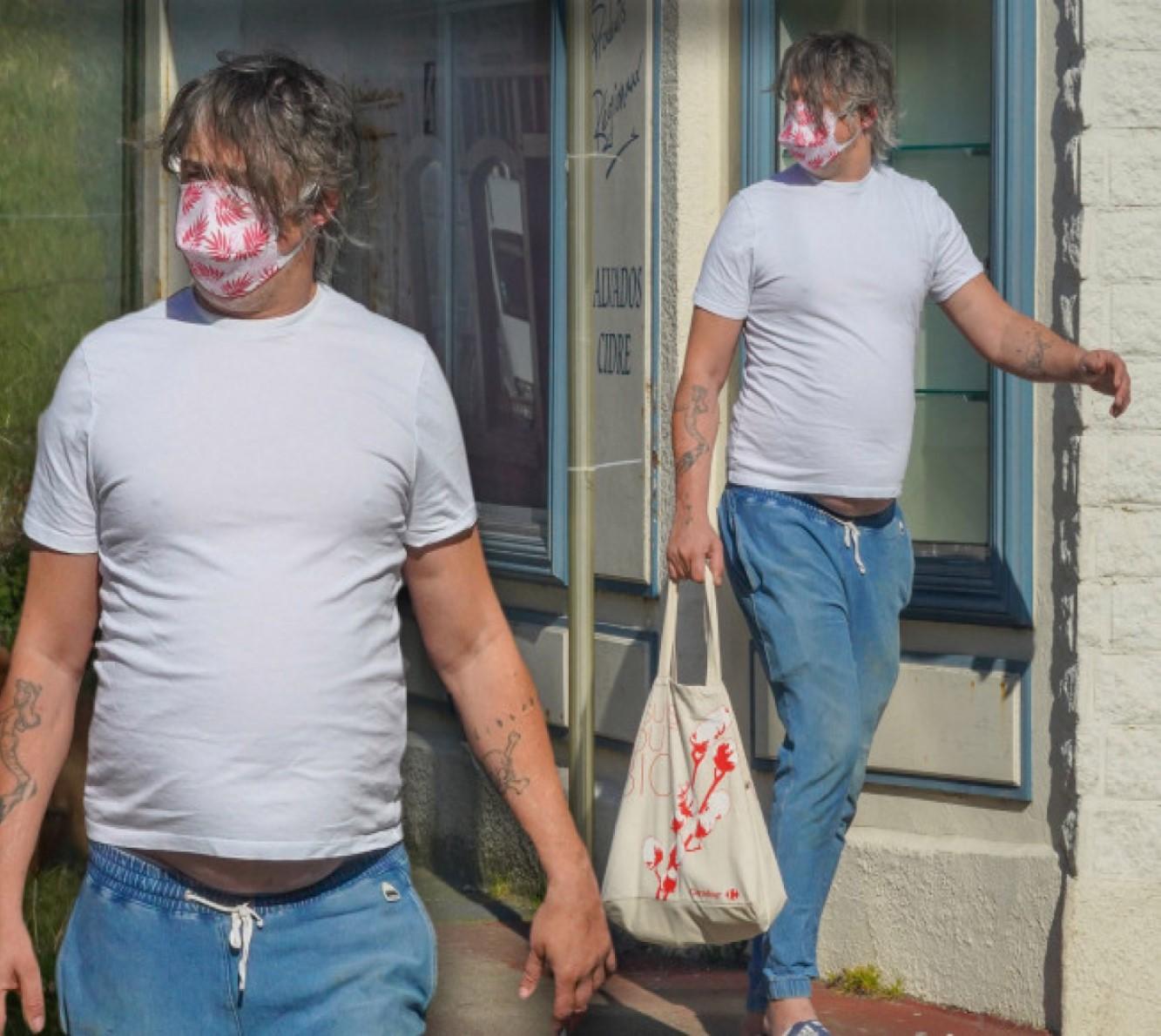 Pete Doherty cantante oggi cambiato foto