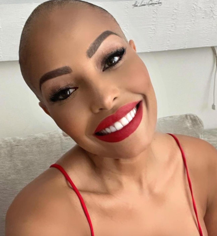 carolina marconi tumore chemio capelli